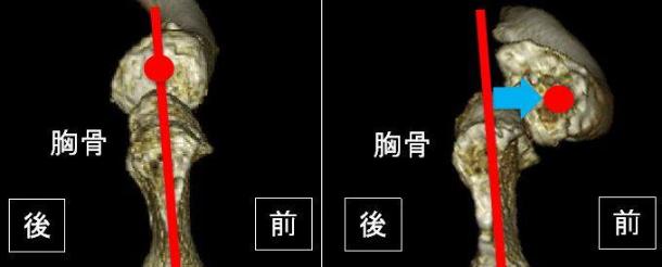 脱臼をわかりやすく説明した写真